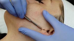 Billings Clinic Facial Plastics & Medical Spa Dermaplaning